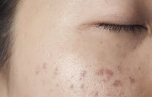 Pigmentation disorders
