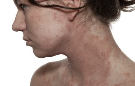 White skinned woman´s face and décolleté with Atopic Dermatitis