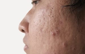 Face close-up with acne