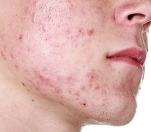 Grades of acne severity image