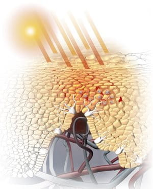 Illustration of sun exposure