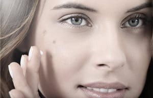 Woman´s face with dark spots on cheek