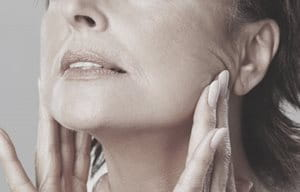 Woman showing loss of volume by stretching facial skin.""
