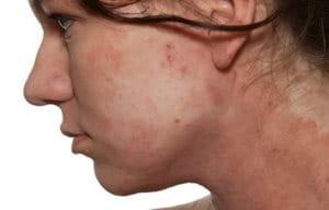 Atopic Dermatitis on the face